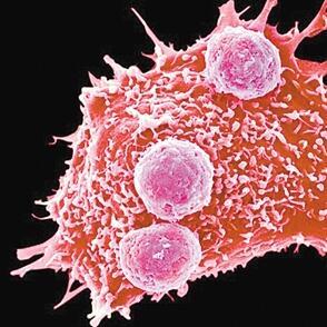 抗癌人体试验