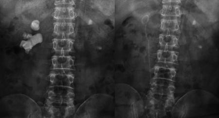 宋先生术前与第二次术后的结石对比