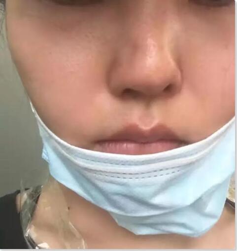 女儿整容失败 母亲割脉:在深圳四季医疗美容大门口讨说法……